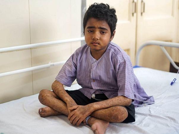 Support Jayesh Koli Fight From Bone Marrow Transplant