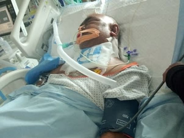 Help My Father To Recover From Brain Tumor