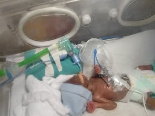 Help our critical pre-term twin baby girls fight for life.