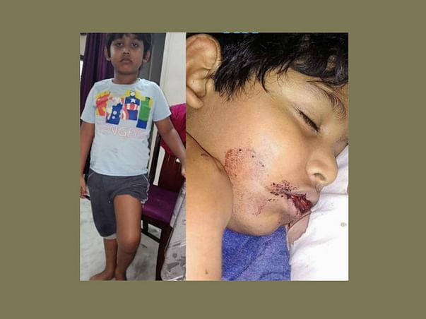 Help 10 yr old Noel suffering from Hemophilia(blood bleeding)