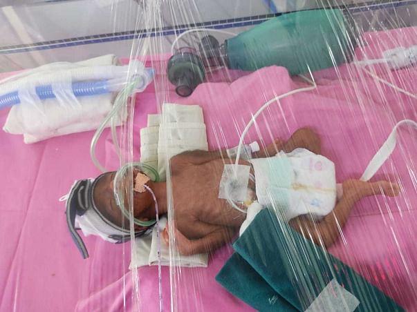 Please Help My Sister's Preterm Birth Twins Girl Babies