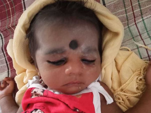 5 Months Old Baby Of Raja Kumari Needs Your Help Fight Liver Infection