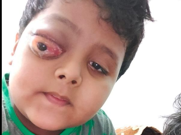 Support Mohammed Alyaan To Recover From Acute myeloid Leukemia