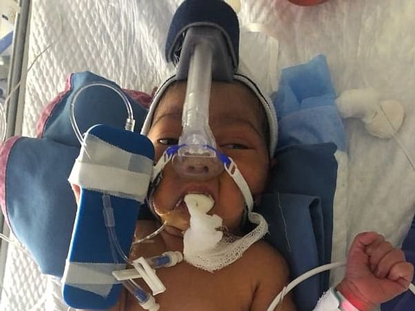 Support Baby Of Rumana Begum Recover From Preterm Birth