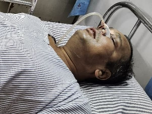 Help my father To Recover From Mucormycosis