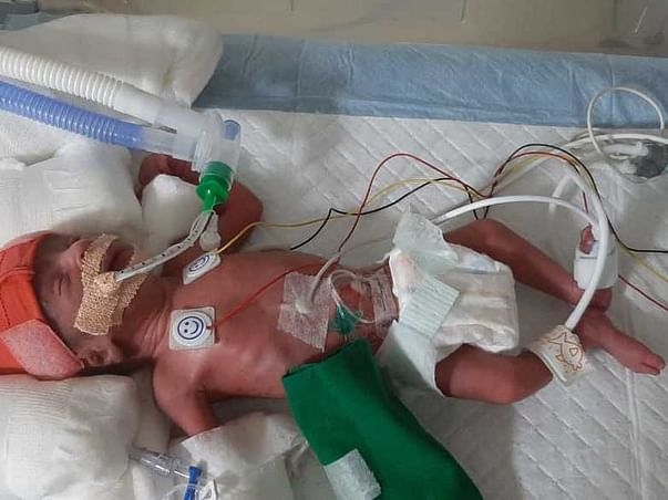 Support Baby Of Savita Aher Recover From Premature Birth