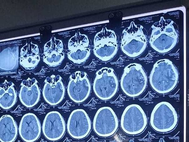 Satyendra Singh's Needs Emergency Brain Surgery