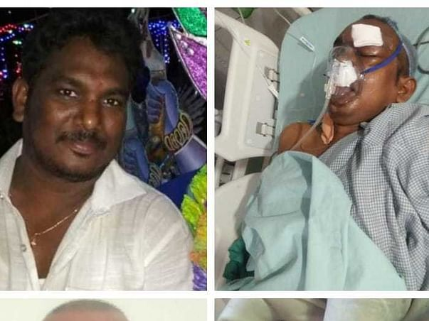 Support My Uncle Balaji To Recover From Black Fungus
