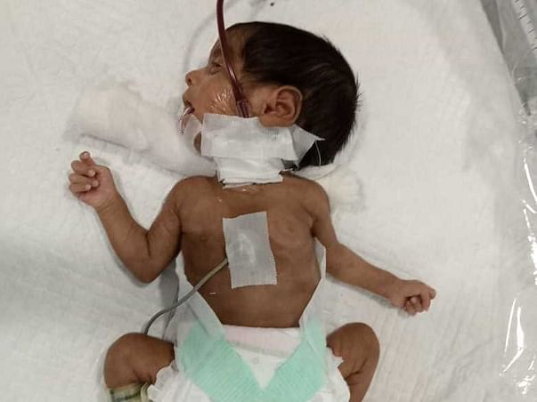 Support This Daily Wage Labour To Save His Premature Baby