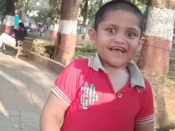 This 3 Years Old Needs Your Urgent Support In Fighting Autism And Brain Issues