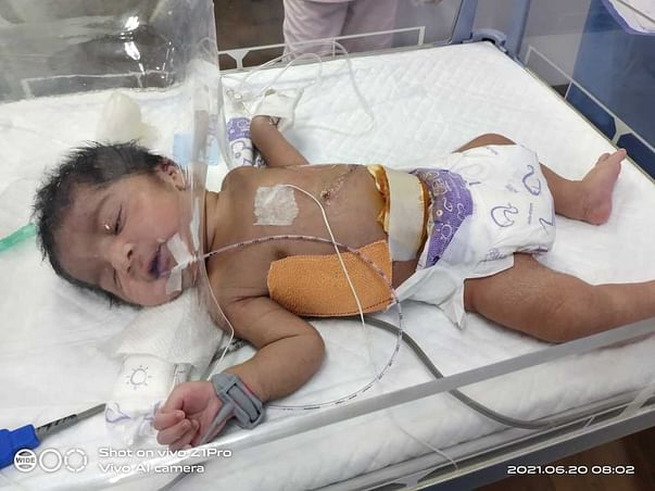 Support Bhavanis Baby Recover From Diaphragmatic Hernia
