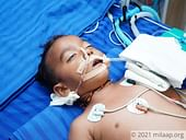 3-Year-Old's Kidney and Liver Are Failing, Now A Severe Infection Is Claiming His Life