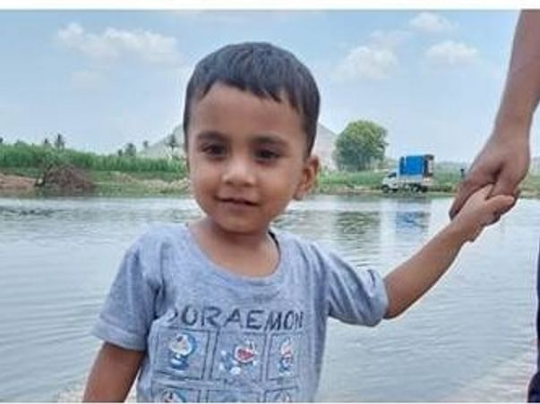 Help 2 Yrs/O Aahil For Liver Transplant