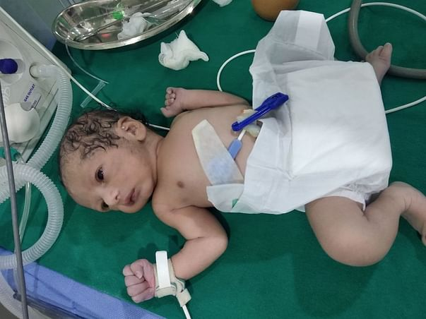 Support Bindhu Priya's Baby  Recover From Atrial Septal Defect ( Heart Block )