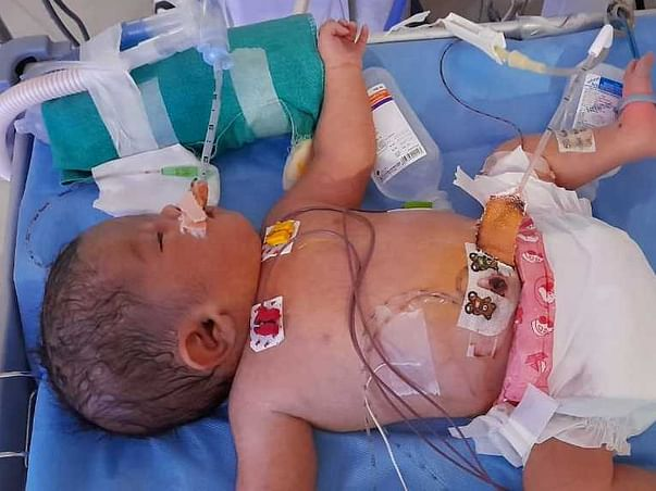 Help Aayan To Recover From MultI Organs Disorder