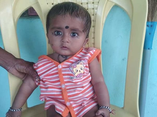 1 Year Old V Bala Mukundha Reddy  Needs Your Help To Recover From Atrial Septal Defect