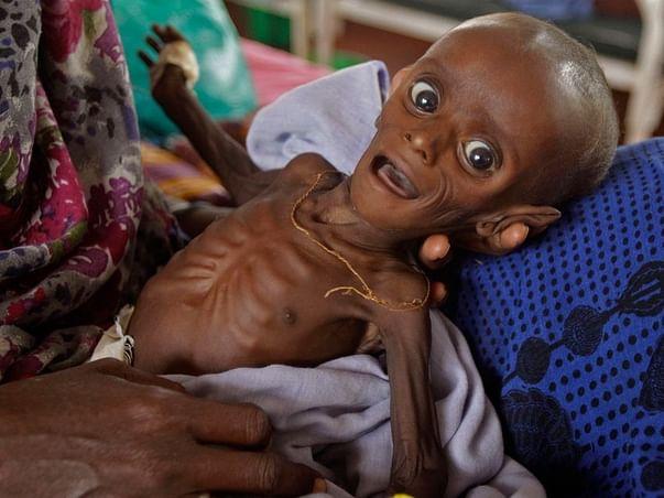 An initiative for feeding 300 Malnourished children 🙏