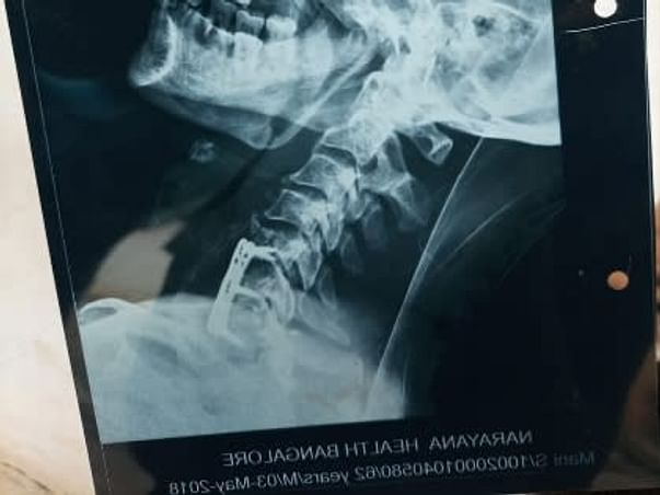 Help My Father To Recover From Spinal Card Injury