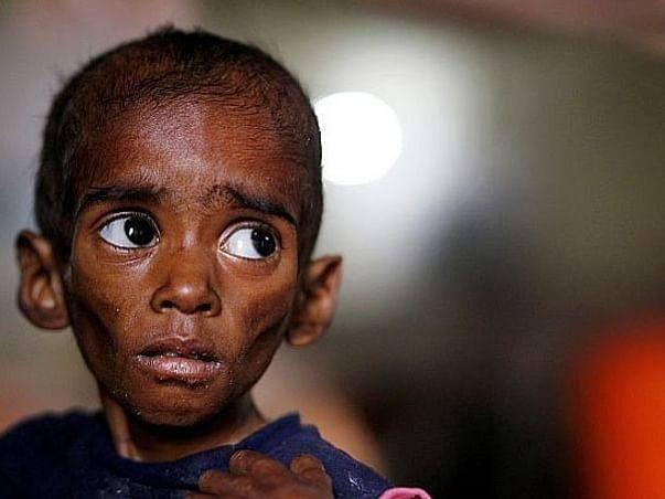 Help 300 Children Beat Malnutrition!