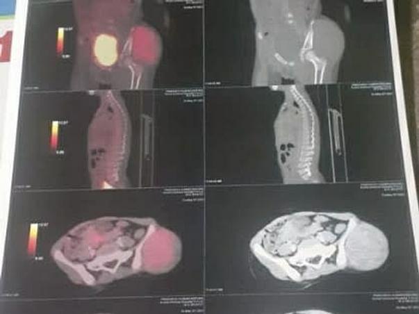 Help Pratheesh Kumar Recover His Tumor Cancer