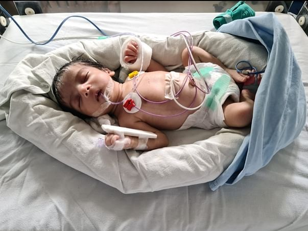 Support Baby Of Hemalatha Recover From Heart Hole
