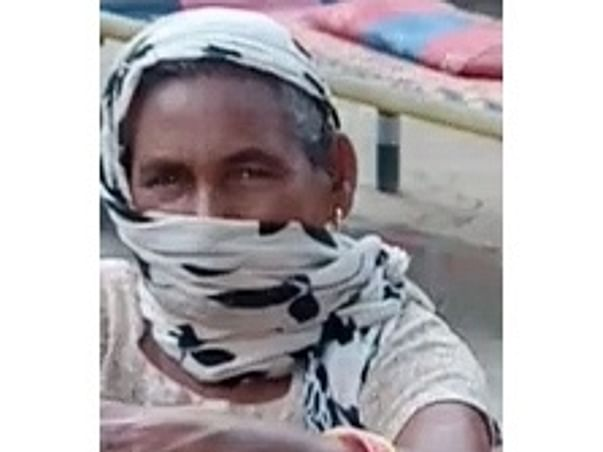 Help Amar Kaur Have ERCP For Choledocholithiasis