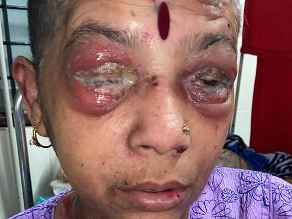 Help Laxmi Recover From Pemphigus