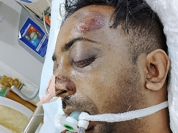 Support Rajesh Arockia  Recover From Accidental Injury