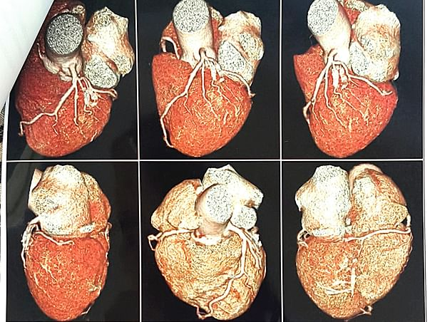 Help Mr Shaik Khadar Baba Undergo  Heart Surgery