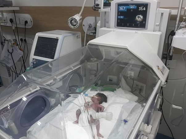 Support Kumar Swami To Save His Premature Baby(Girl)