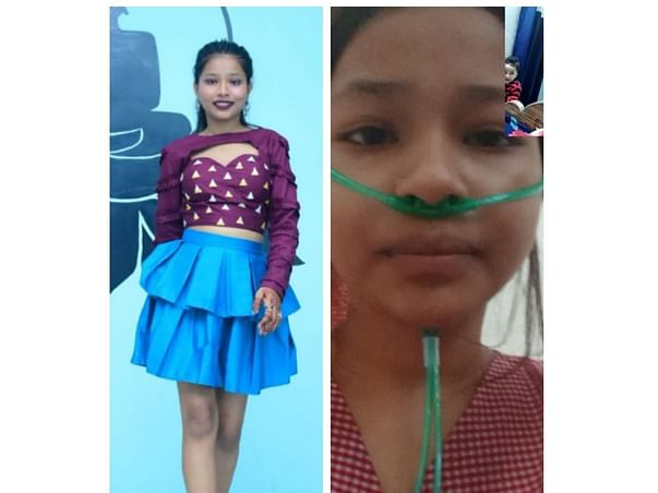 Support Ny Cousin To Recover From Megaloblastic Erythroid Hypoblastic Anemia