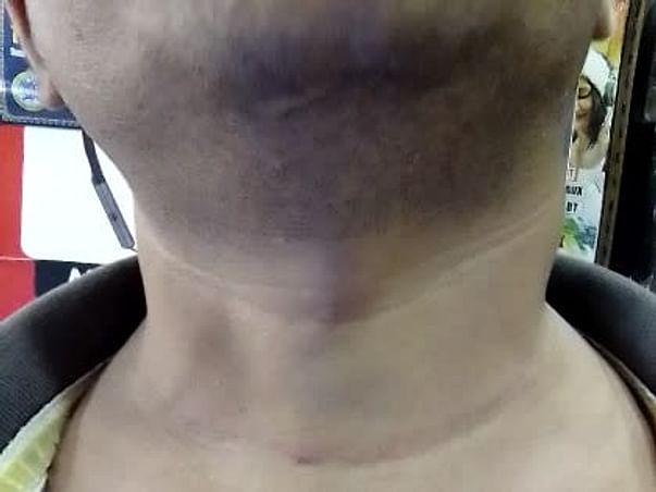 I'm Struggling With Head And Neck Cancer, Help Me