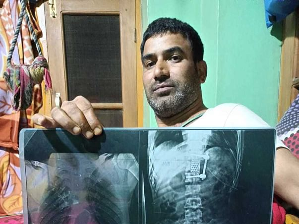 Support Mushtaq Ahmad To Recover From Spinal Cord Injuries