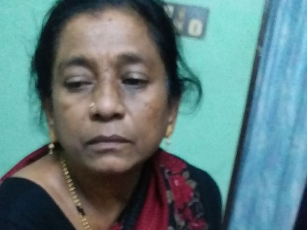 Help My Mother For Both Eyes Cataract Surgery