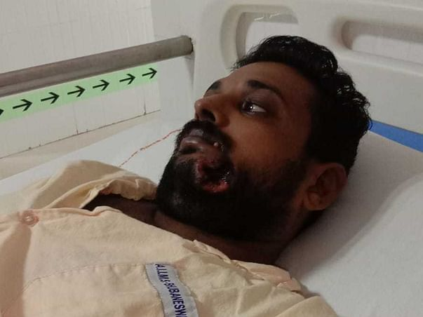 Sachikant Suffering With 2nd Stage Oral Cancer, Need Fund For Surgery!