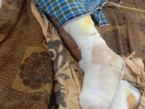 Support Narayan Rao Recover From Sepsis, Gangrene