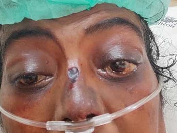 Please help my sister who is suffering from LUPUS