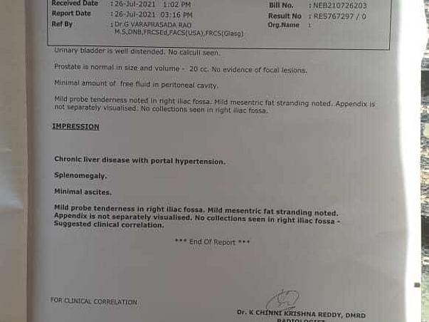 Support Khan To Undergo Liver Transplantation