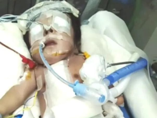 Please Support My 1 Year Old Son Suraj, He Suffering From TOF.