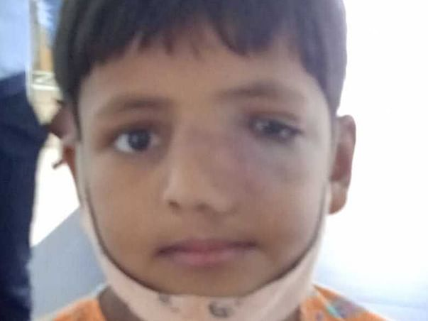 Support Abdul Fattah Gazali Recover From Nasal Lymphoma