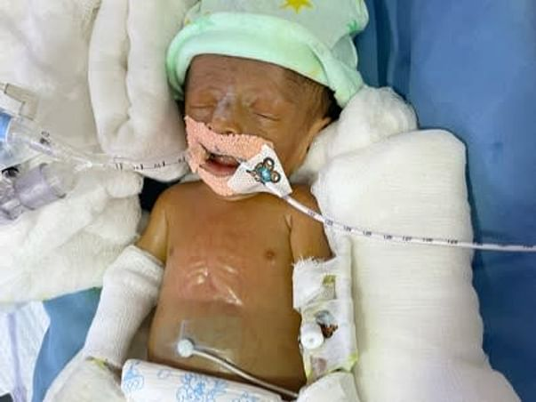 Help 45 Days Old Baby Of Aakanksha To Recover Premature Birth Issues