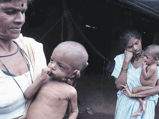 Help us fight malnutrition that plagues our nations children
