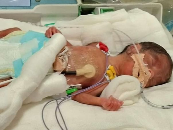 Help Priti's New Born Twins Recover From Preterm Birth Complications