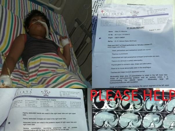 Fundraiser For Manohar Treatment | Surgery For Lungs