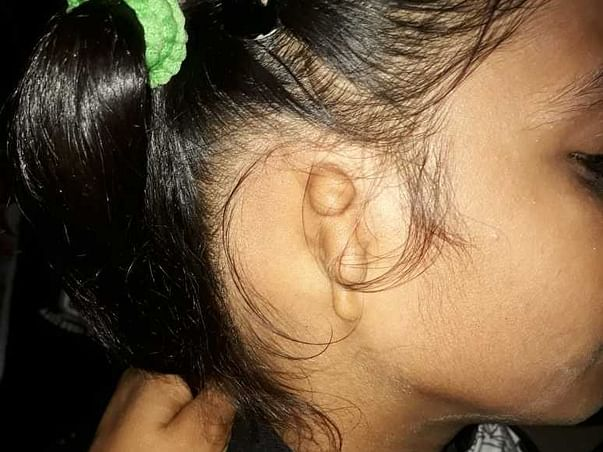 7 Years Girl Baby Without Ear