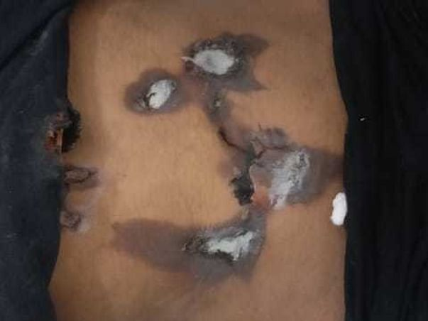 Help Ashish From An Amputation Situation Of Severely Burnt Hand