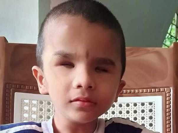 7 Years Old Anand Hari Needs Your Help Fight Microphthalmia