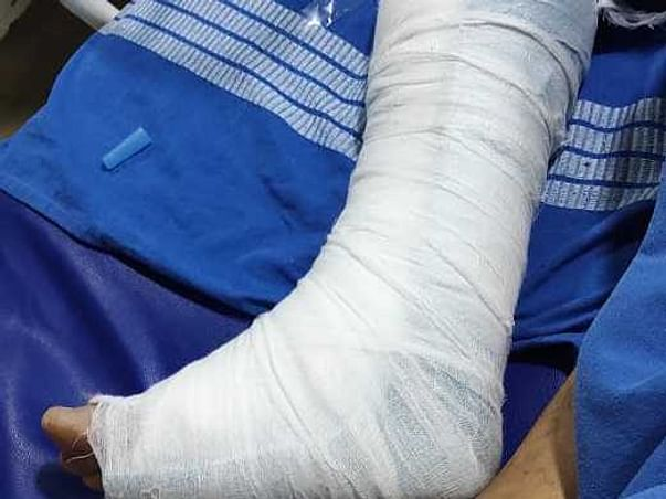Help My Father To Recover From Accidental Injuries
