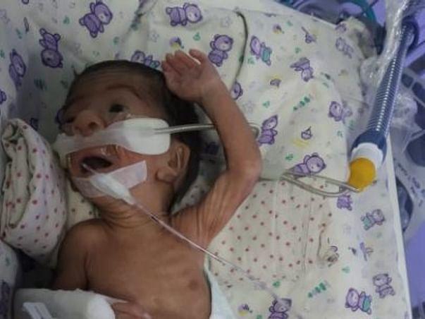 Help Ankush & Chhaya's Premature Baby Recover Respiratory Distress