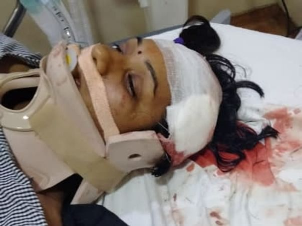 Support Swathi Recover From Accident Head Injury